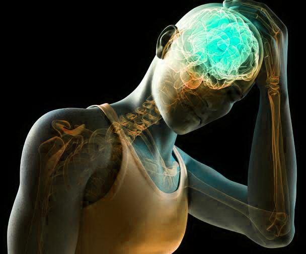 Having post-concussion syndrome PCS